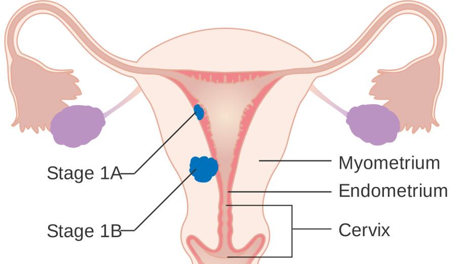 рак эндометрия 1 стадии