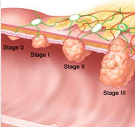 рак прямой кишки 1 стадии