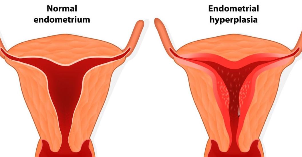 сложная гиперплазия эндометрия