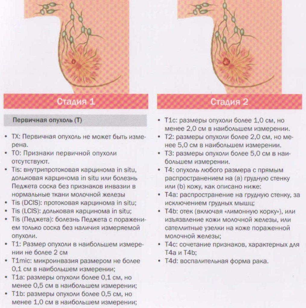 первые стадии рака молочной железы