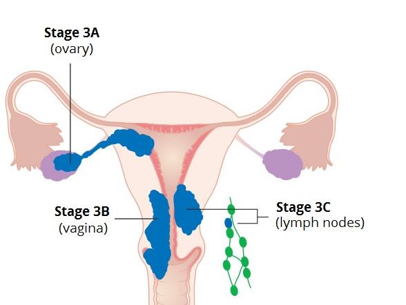 рак эндометрия 3 стадии