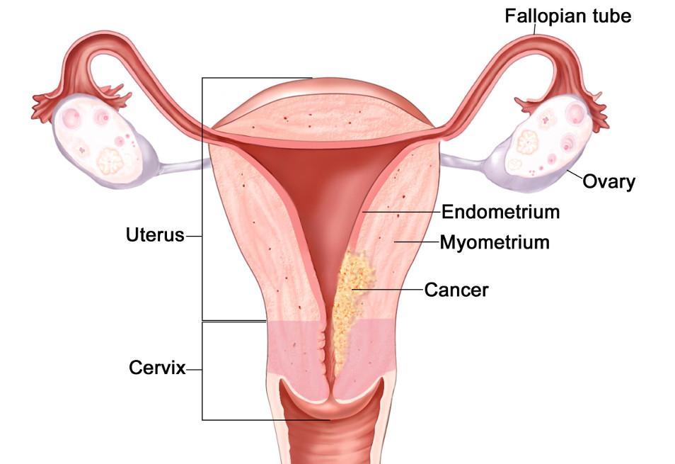 2 стадия рака эндометрия