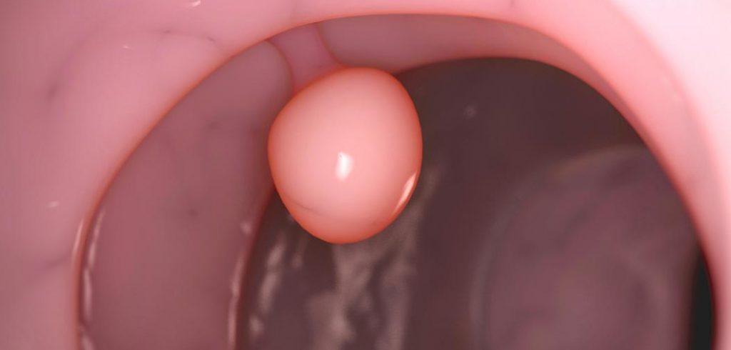 железистый полип цервикального канала