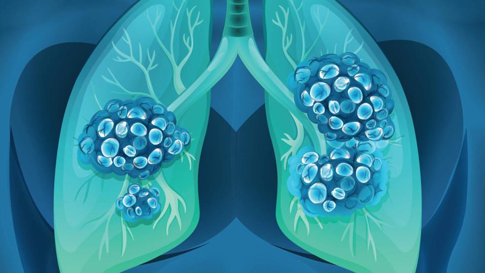 метастазы в легкие при раке молочной железы