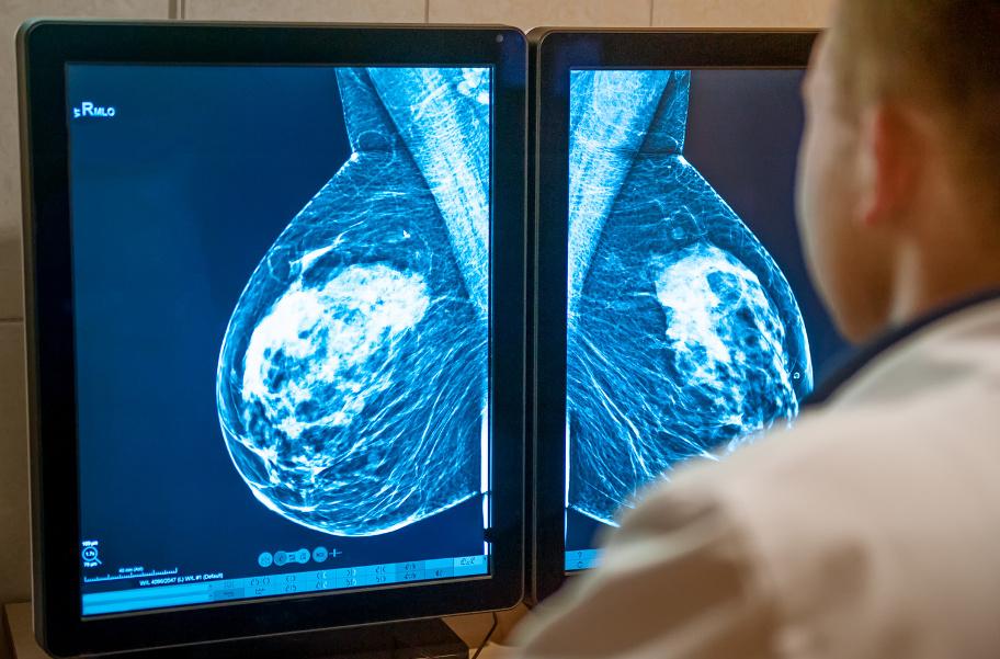 результаты маммографии молочных желез