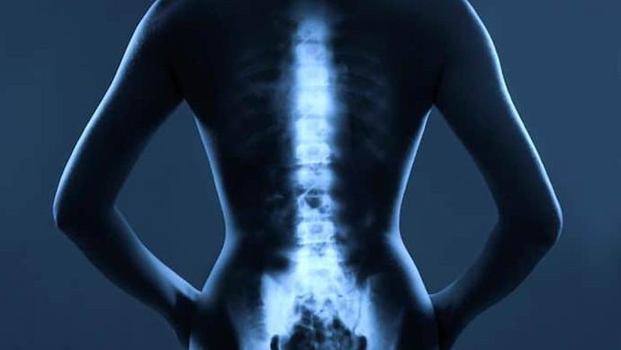 метастазы в костях при раке молочной железы
