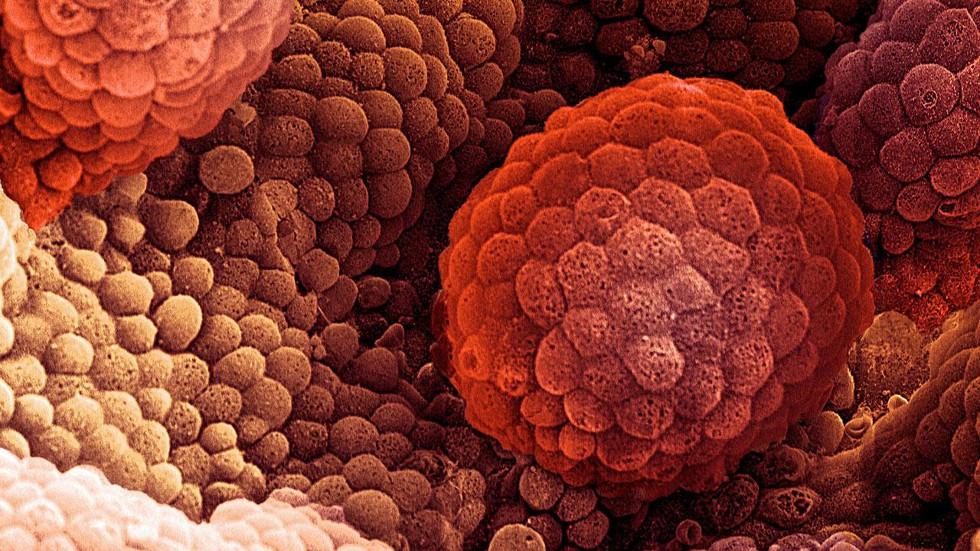 бессмертие раковых клеток