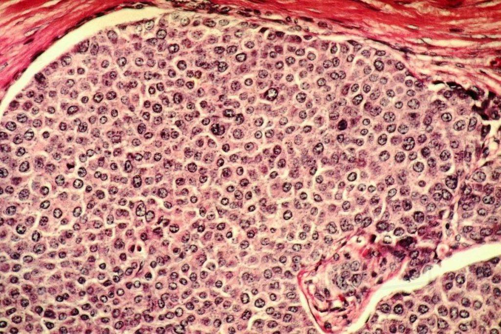 гистология рака молочной железы