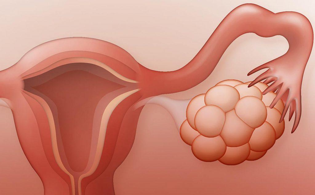 киста яичника в менопаузе