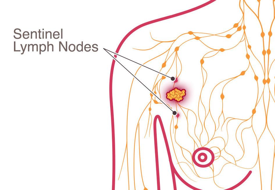 метастазы в лимфоузлы при раке молочной железы