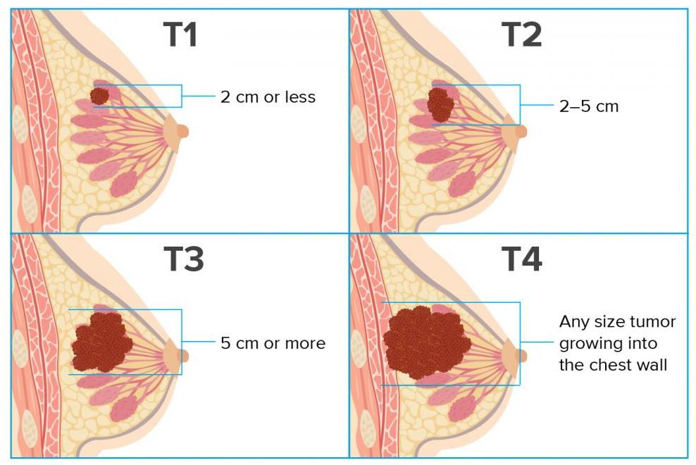размер опухоли молочной железы