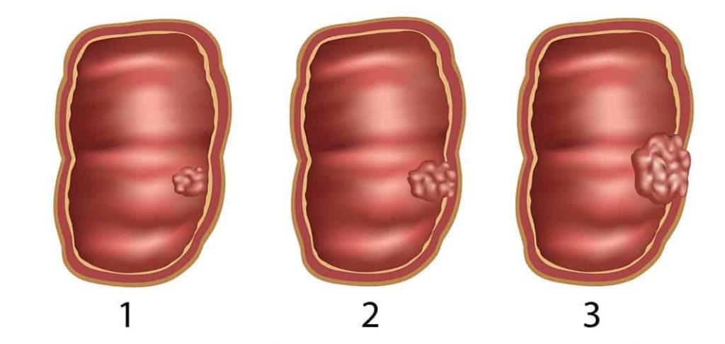 рак кишечника 2 стадия