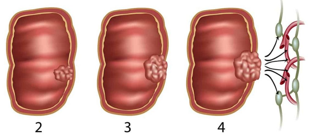 рак кишечника 3 стадия