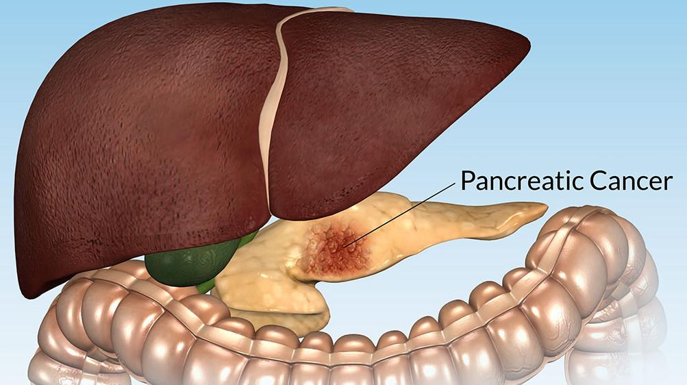 рак поджелудочной железы 2 стадия
