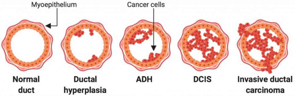 инфильтративный протоковый рак молочной железы
