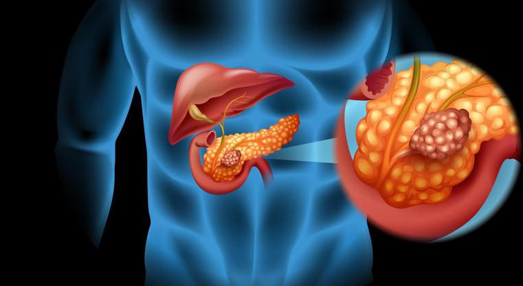 рак поджелудочной железы 1 стадия