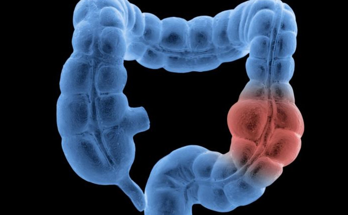 рецидив рака кишечника