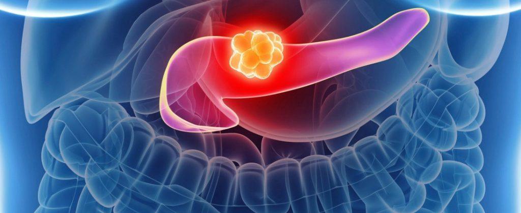 рак поджелудочной железы 3 стадия