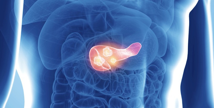 рак поджелудочной железы 4 стадия
