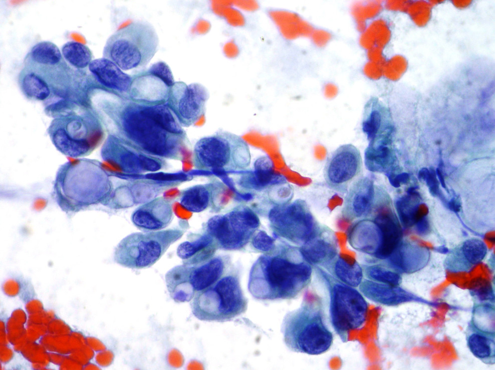 дольковый рак молочной железы
