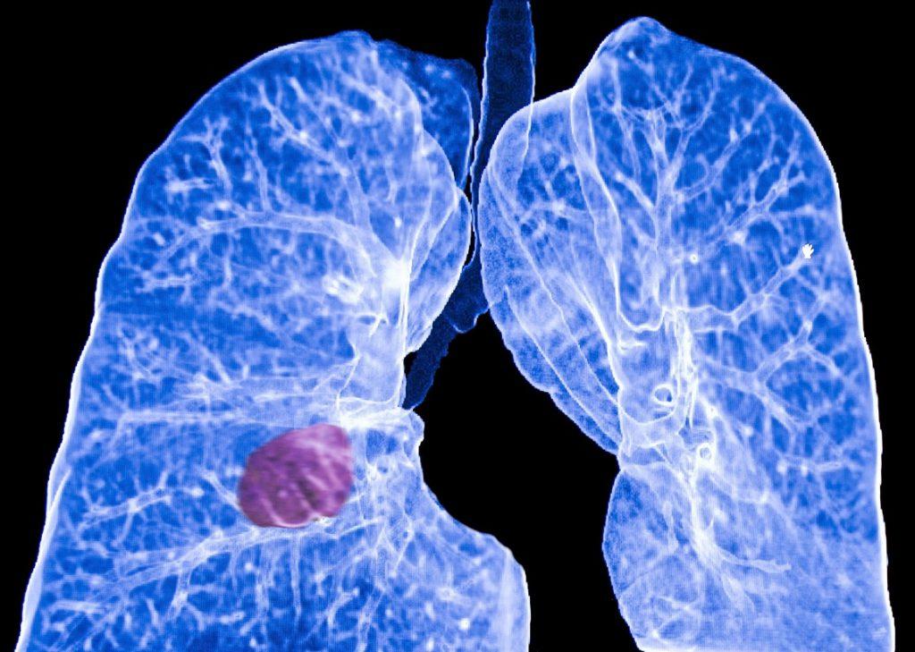 виды рака легких