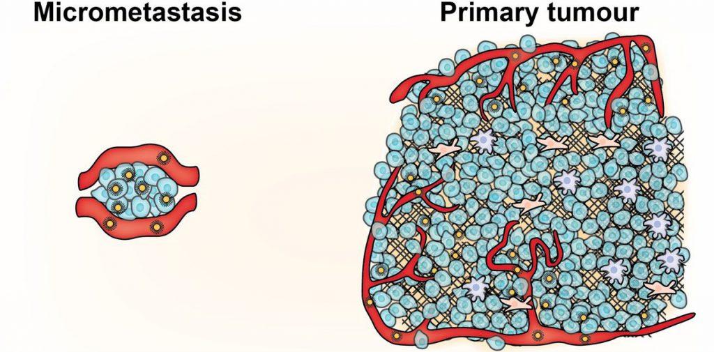 микрометастазы