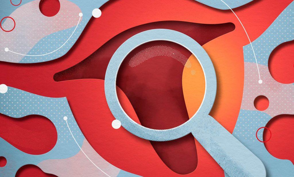 миома и гиперплазия эндометрия