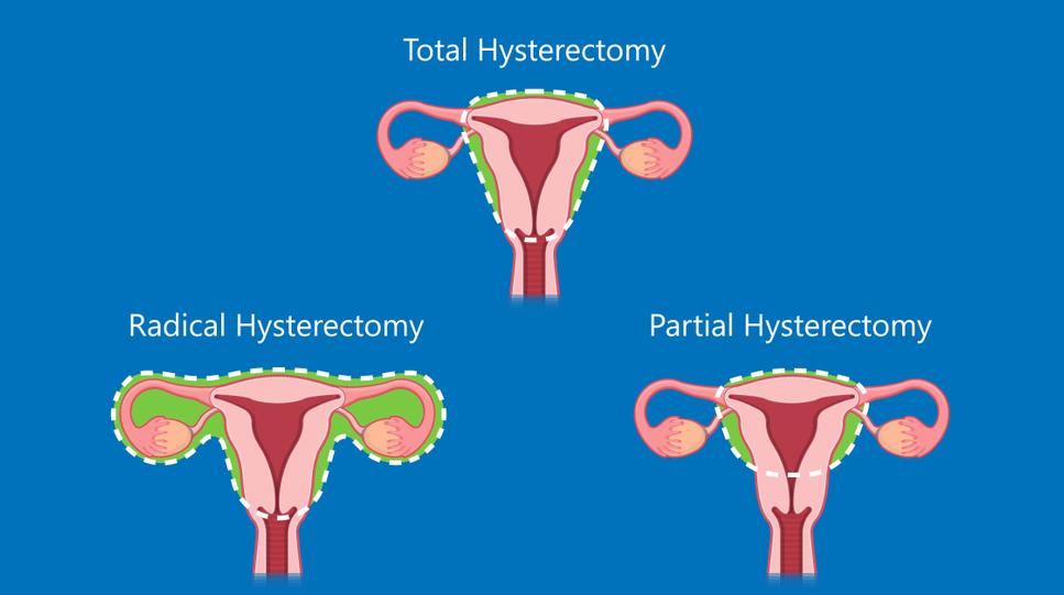 тотальная гистерэктомия