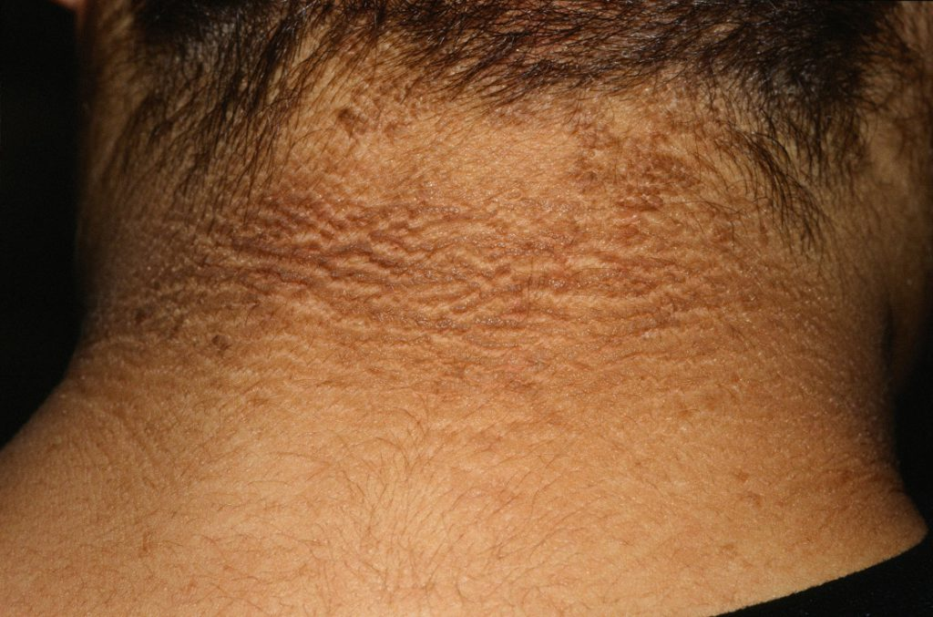 черный акантоз кожи