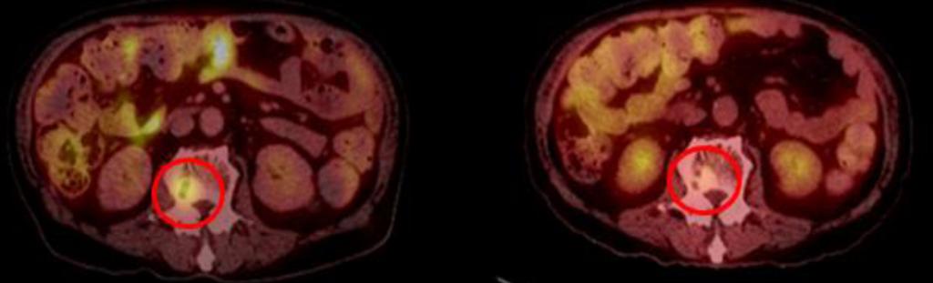 вторичные очаги опухоли