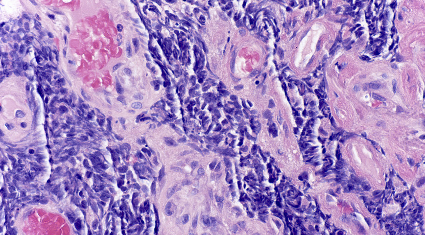 морфология рака