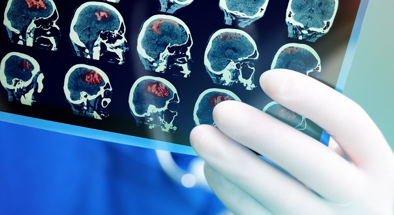 пэт-кт при онкологии