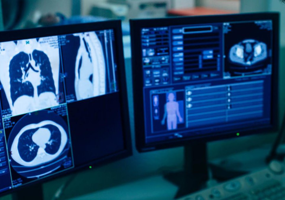 стадии диагностики рака