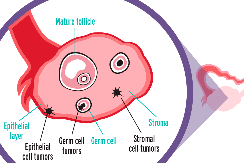 герминогенные опухоли