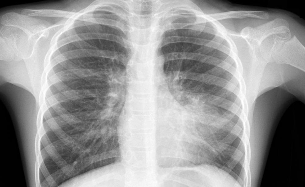 инфекции при онкологии