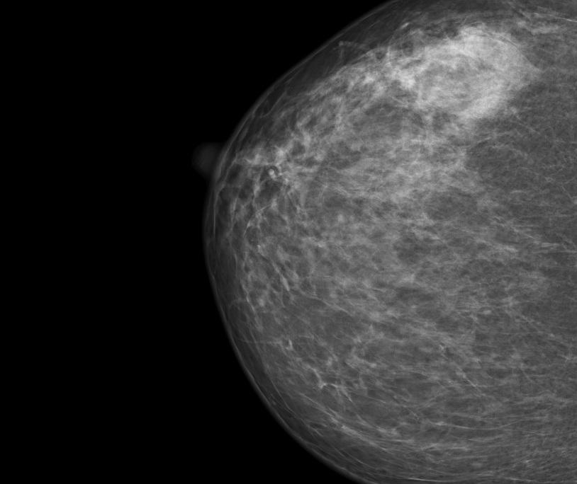 bi-rads при мастопатии