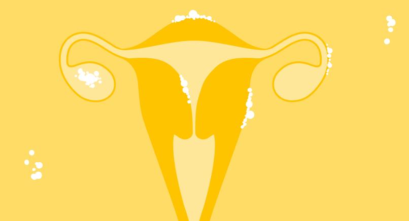 эндометриоза без операции