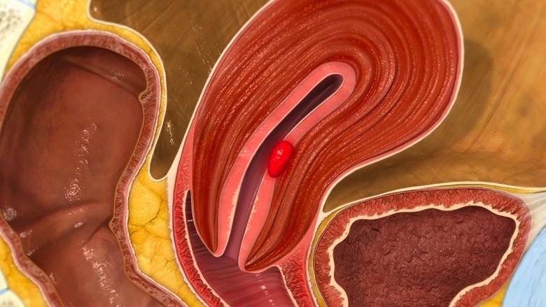 признаки рака эндометрия
