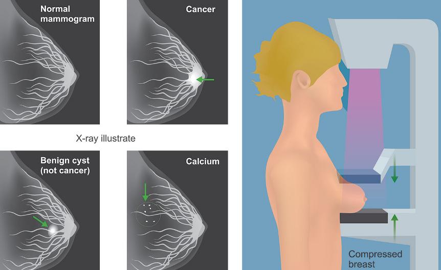 расшифровка результата маммографии