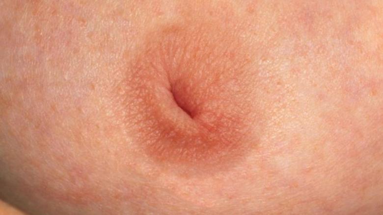 втянутый сосок молочной железы