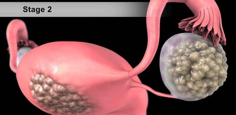 рак яичников 2 стадии