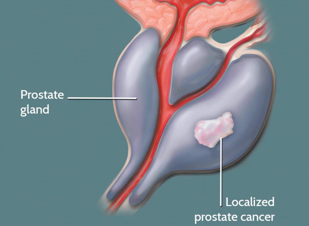 рак простаты 2 стадии