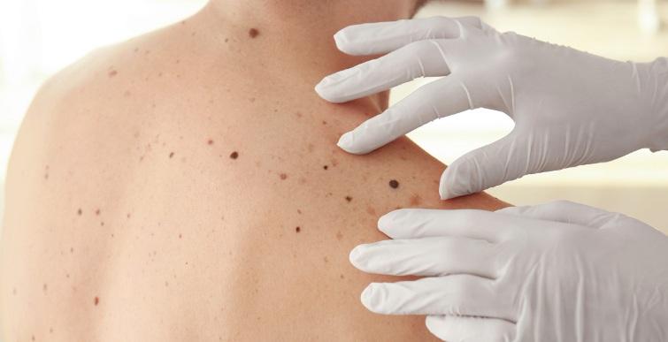 диагностика рака кожи