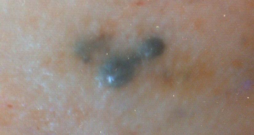 кожные метастазы меланомы