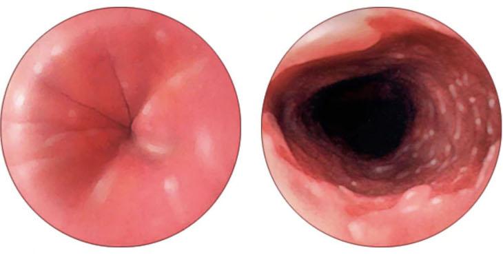рак пищевода 1 стадии