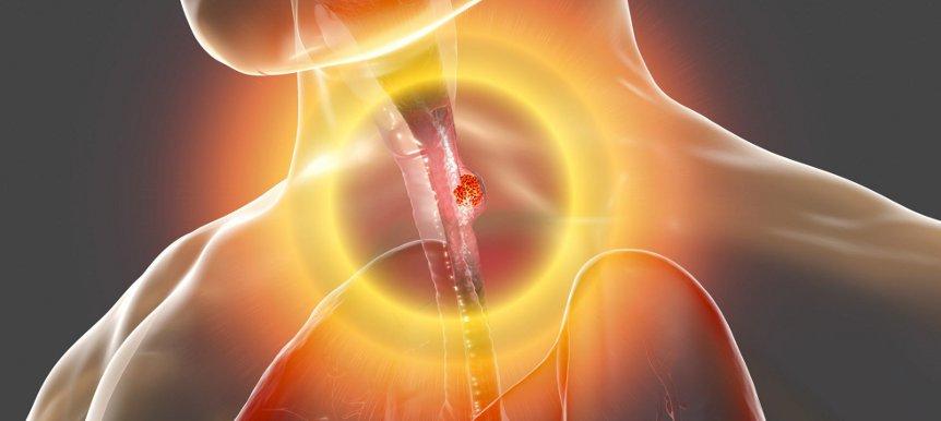 рак пищевода 3 стадии
