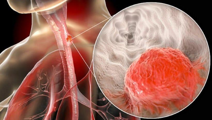 рак пищевода 4 стадии