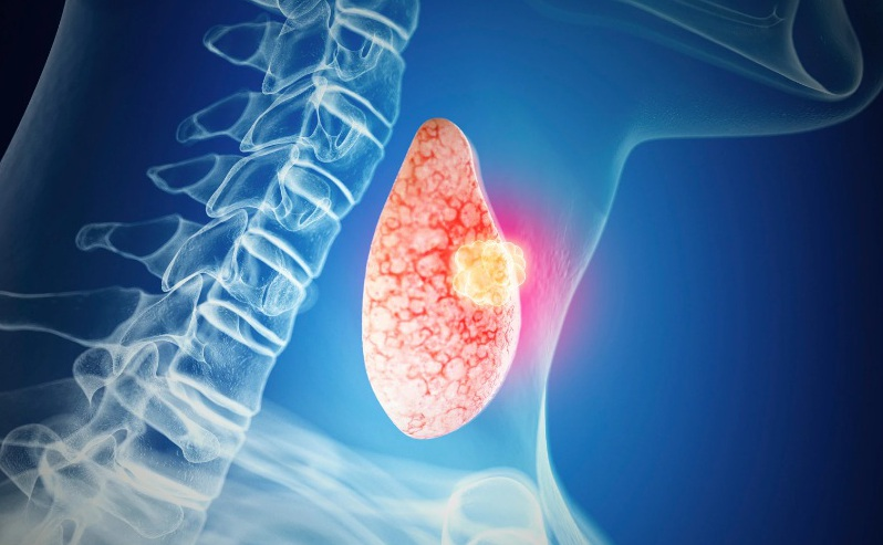методы диагностики рака щитовидной железы