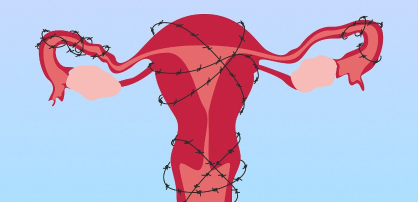признаки внутреннего эндометриоза